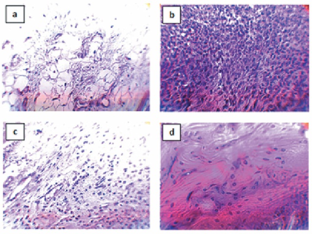 Histological proliferation and infiltration of the leucocytes to the join tissues of rat paw.