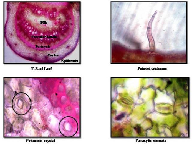 Photomicrographs of microscopic characteristics of P. pinnata leaf.